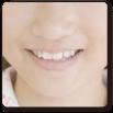 森歯科矯正歯科にて治療し改善した症例の紹介